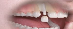 Impianti Dentali in Zirconio