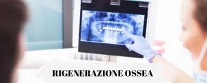 RIGENERAZIONE OSSEA DENTALE in Implantologia per mancanza di osso